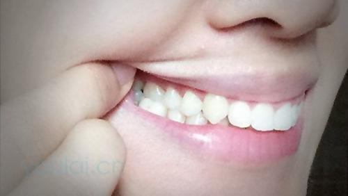 牙龈炎:常见的药物以及其副作用