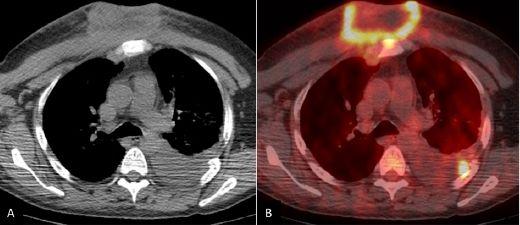 NK/T 细胞淋巴瘤:我们亚洲人应该格外注意的一种淋巴癌